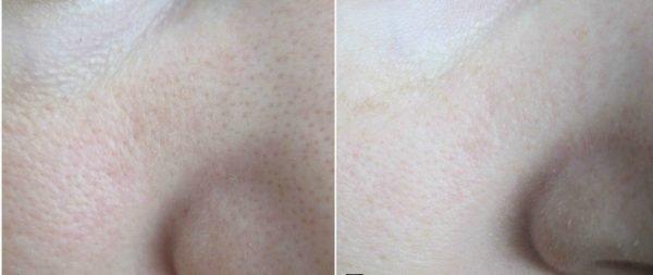 Лицо До и После применения содового состава