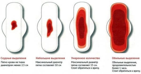 Скудные, умеренные и обычные менструальные выделения (показано на прокладке)