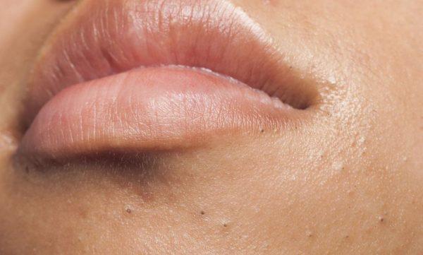 Чёрные точки на губах и вокруг