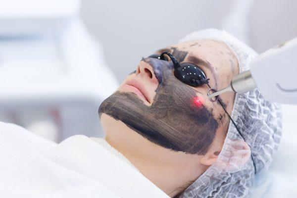 Лазерное очищение лица
