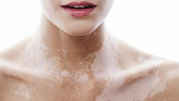 Внешний вид кожи с витилиго