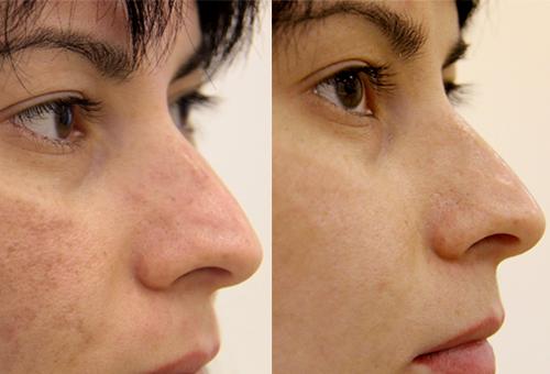 Фото лица «до» и «после» использования бадяги
