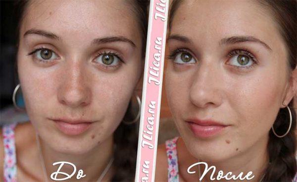 Фото девшки «до» и «после» применения бадяги