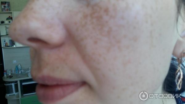 Лицо до испольхзования крема