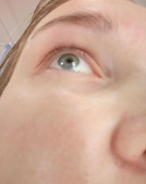Кожа под глазами девушки после двух месяцев использования осветляющей крем-сыворотки от EO LABORATORIE