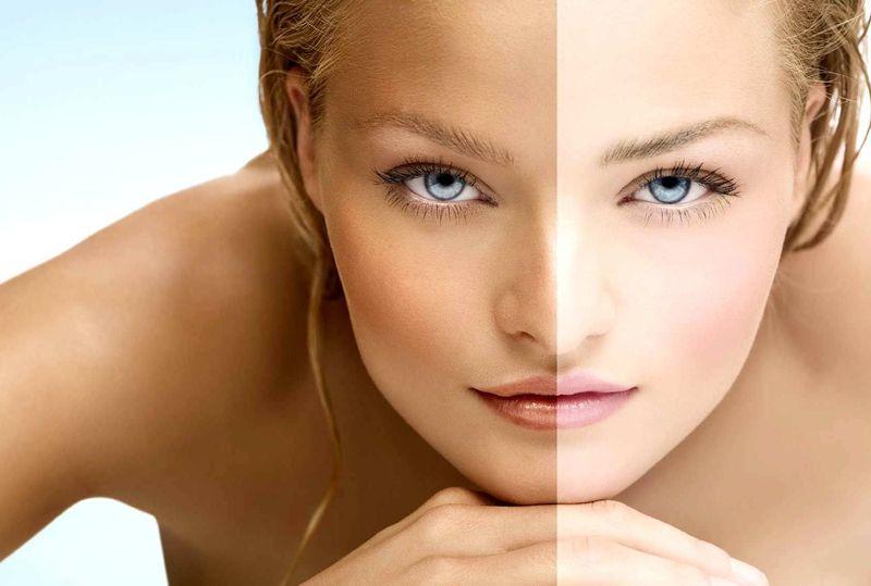 Что такое фототип кожи и как его определить