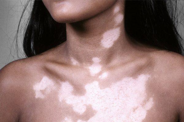 Заболевание кожи лейкодерма
