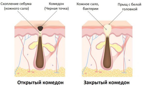 Схематическое изображение открытого и закрытого комедонов