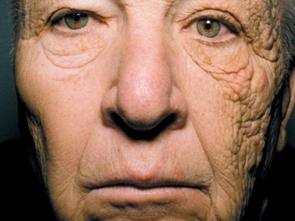 Процесс фотостарения кожи