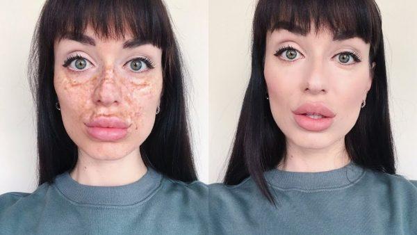 Макияж при пигментации на лице