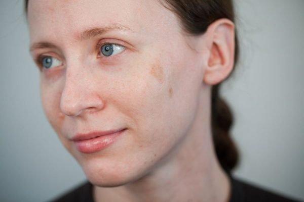 Пигментное пятно на лице