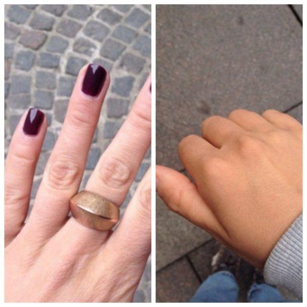 Рука девушки до и после загара при предварительном использовании Веторона