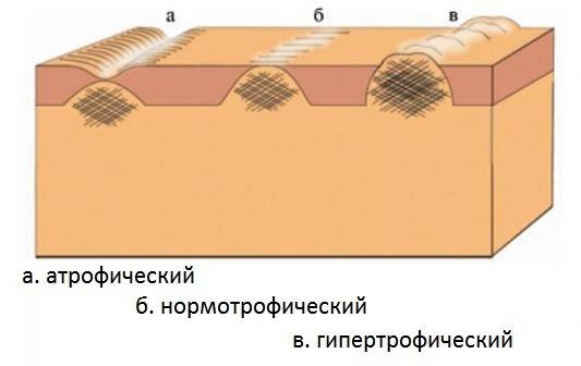Типы шрамов