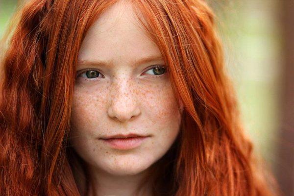 Девушка с первым фототипом кожи