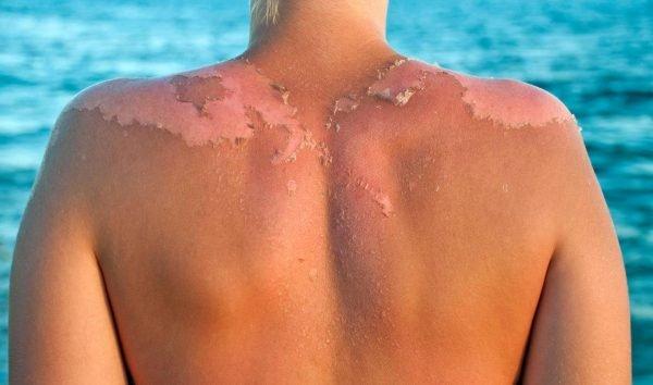 Облезает кожа после загара