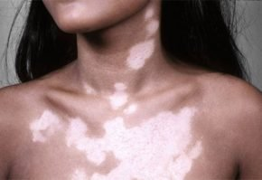 Белые пятна на загорелой коже