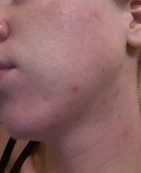 Воспаления на шее и подбородке после процедуры
