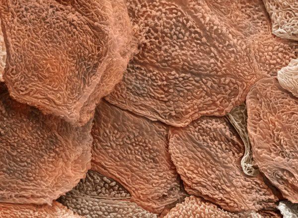 Шелушащаяся кожа под микроскопом