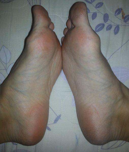 Ноги после 1 применения DOMIX GREEN PROFESSIONAL «Жидкое лезвие»