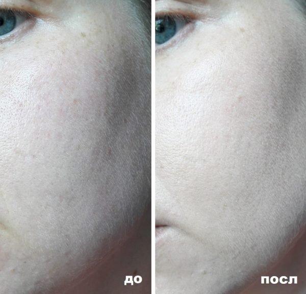 Кожа лица до и после нанесения Lumene CC Color Correcting Cream