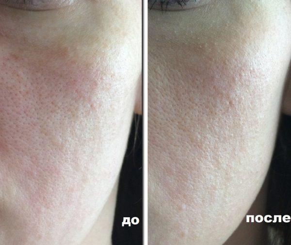 До и после нанесения CC Cream Librederm для жирной кожи серии «Серацин»