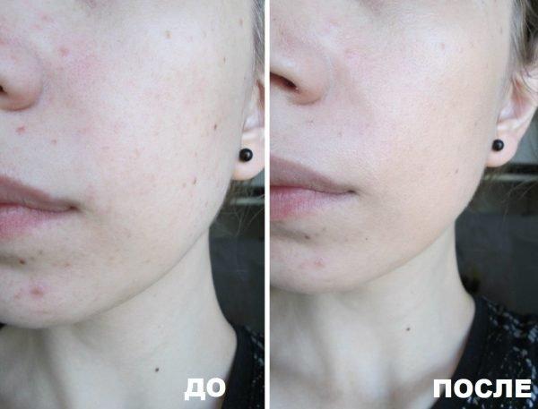 До и после нанесения CC Cream Avon Mark