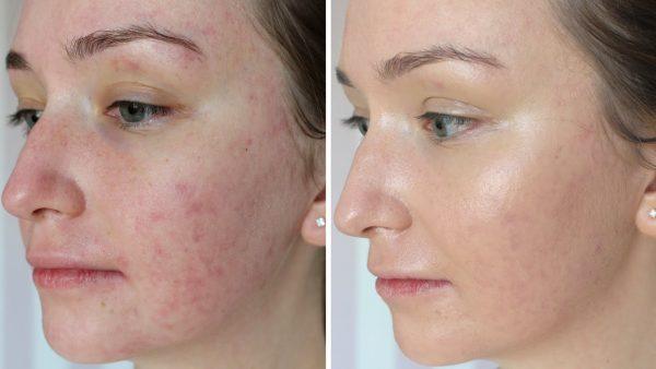 До и после нанесения CC крема, наглядный пример