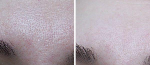 До и после применения TONY MOLY Egg Pore Silky Smooth Balm