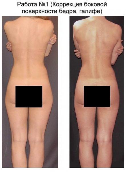 Эффективность косметологических процедур против «ушей»