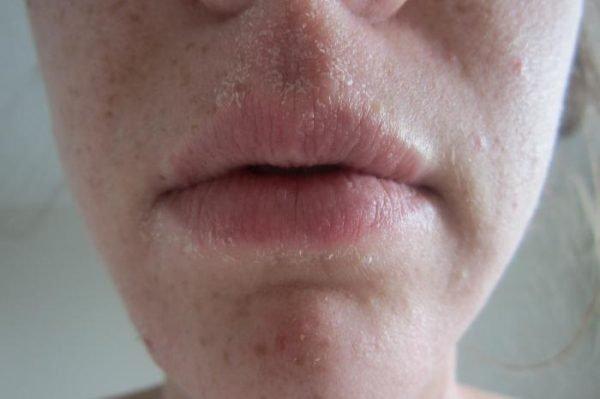 Шелушение на лице