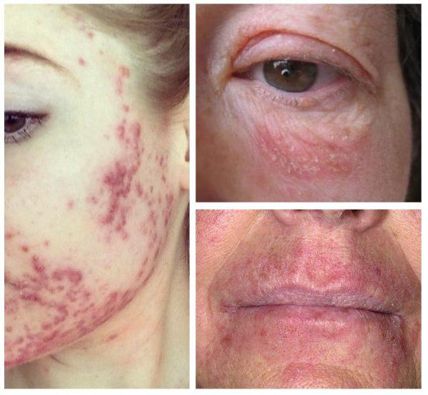Примеры аллергического раздражения