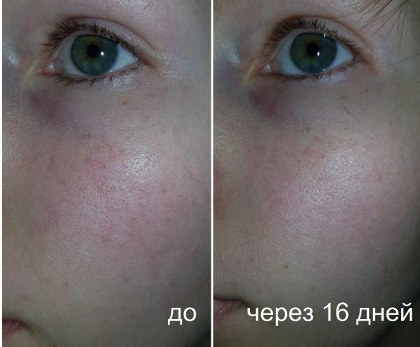 Результат использования флюида для лица La Roche Posay Toleriane Ultra Fluide