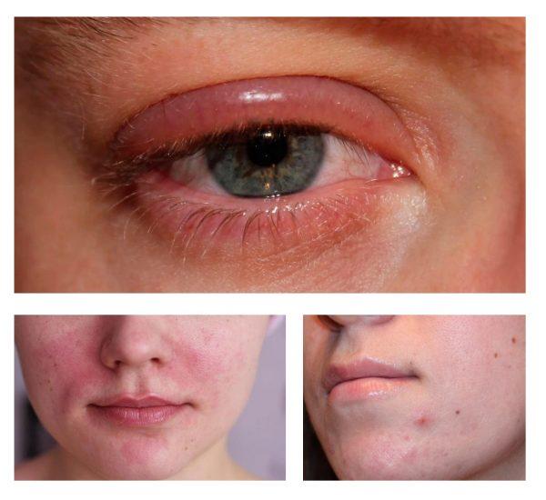 Примеры аллергических реакций кожи