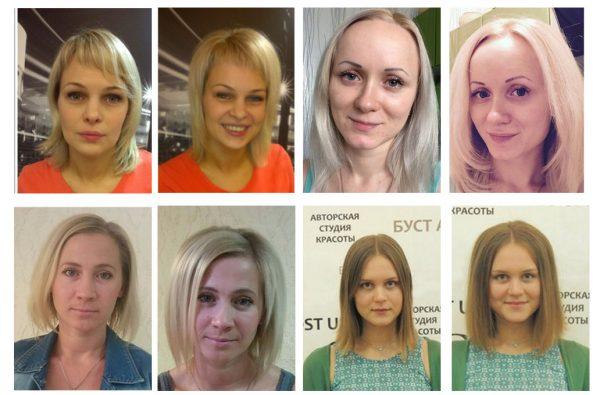 Прикорневой объём на волосах после буст ап