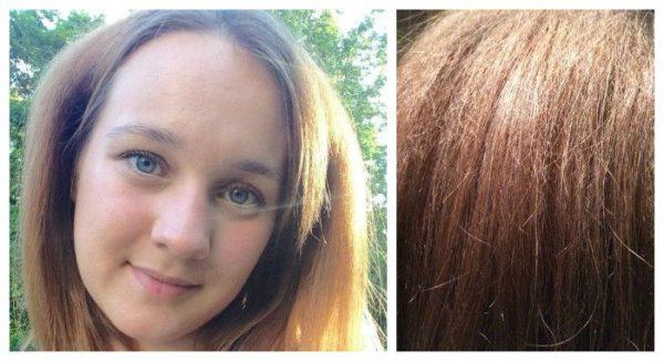 Волосы через полгода после буст ап